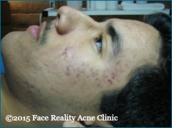 What is cystic acne 2©